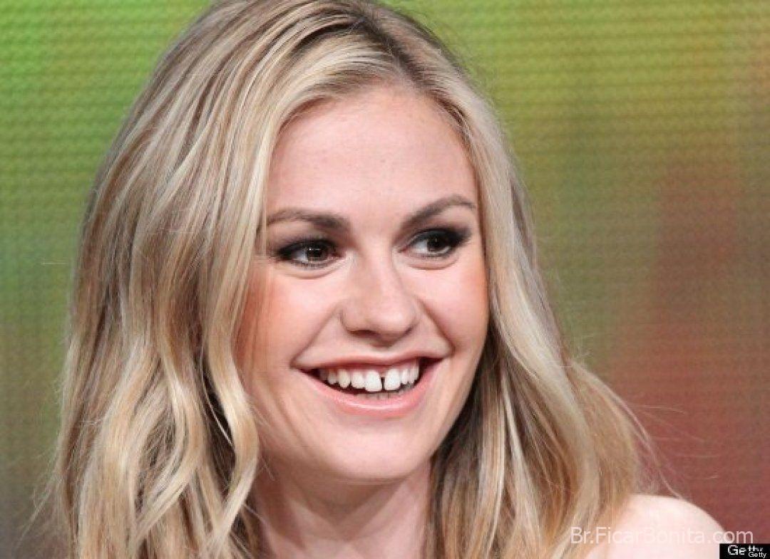 Veja as celebridades que tem os dentes Ruins