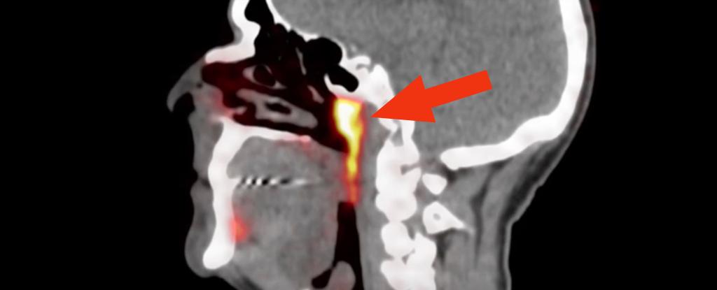 Cientistas acabam de descobrir um órgão misterioso escondido no centro da cabeça humana