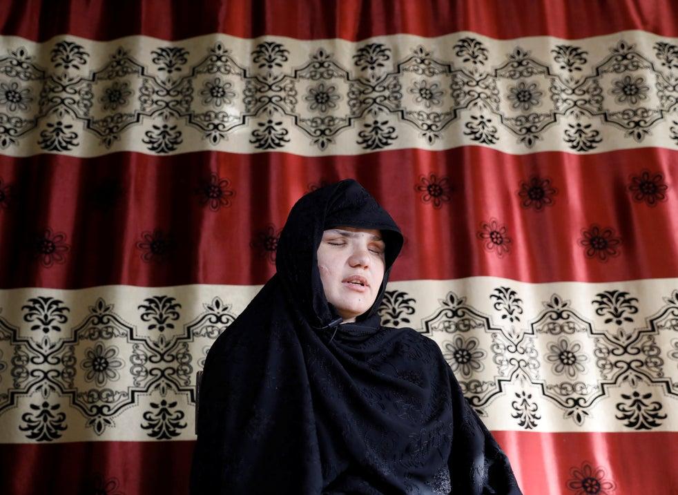 Mulher afegã ficou cega e foi esfaqueada por conseguir emprego