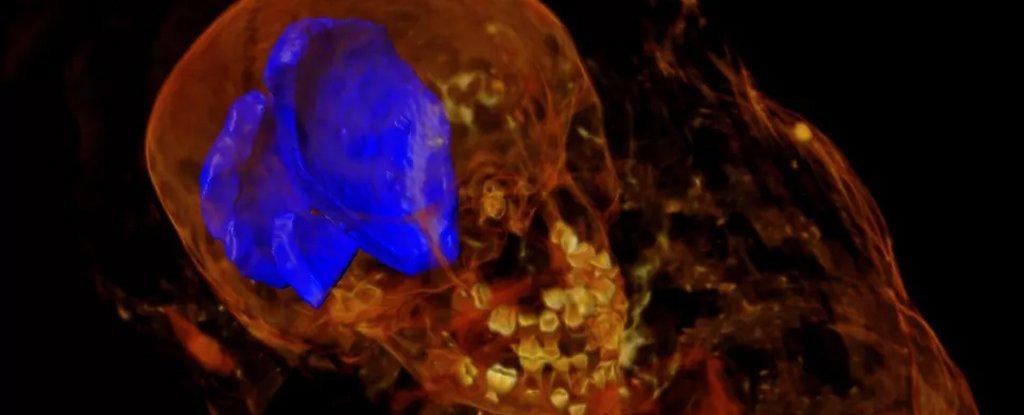 Radiografias de múmias egípcias revelam uma descoberta surpreendente