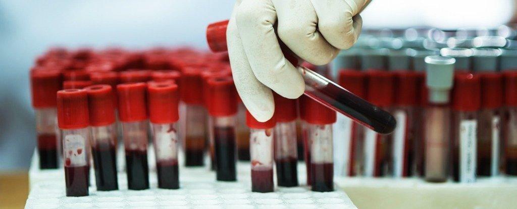 Novo teste brilhante encontra superbugs no sangue de um paciente, em apenas uma hora
