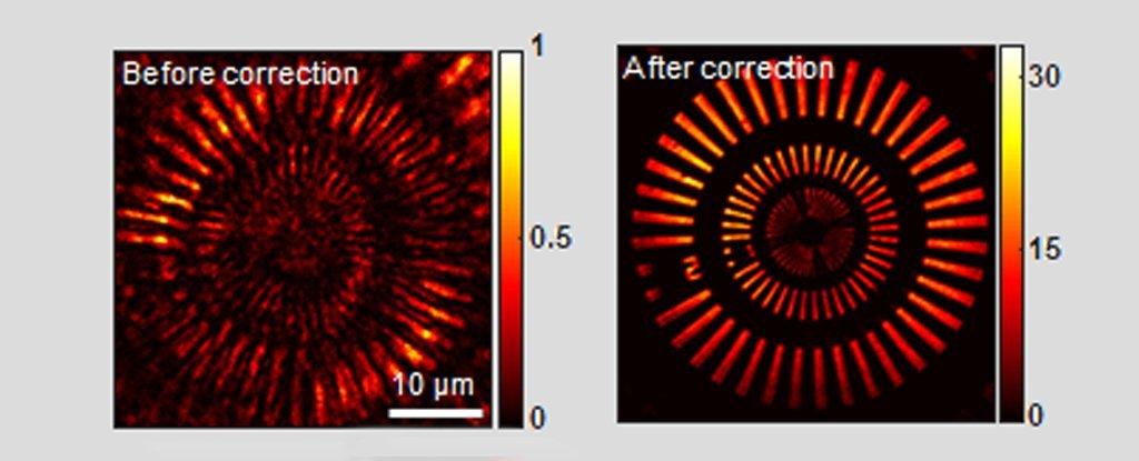 Cientistas inventam um microscópio que pode examinar com segurança seu crânio